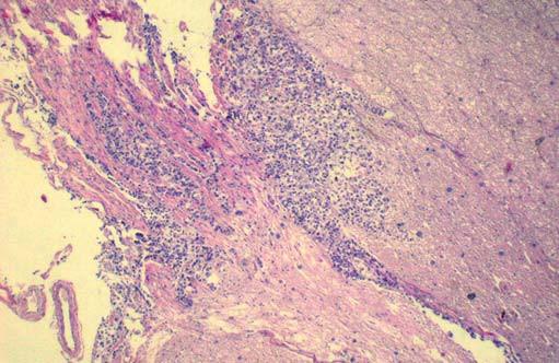 Mikroskopický sekční nález. Vlevo infiltrace mozkového parenchymu, vpravo odstupu hlavového nervu (s poděkováním prim. MUDr. P. Holanovi).