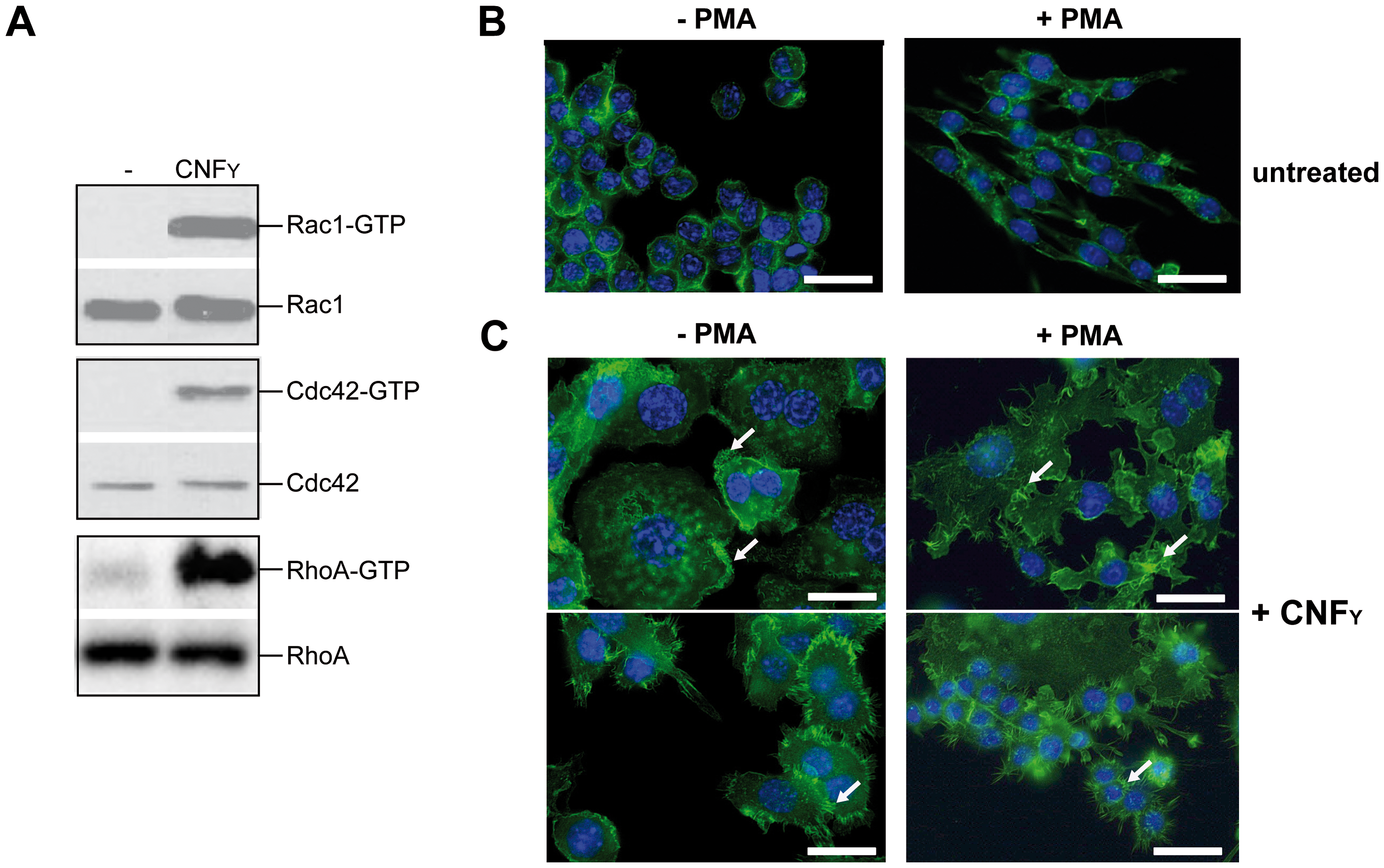 CNF<sub>Y</sub>-mediated activation of Rho GTPases and morphologic modification and F-actin rearrangements of murine macrophages.