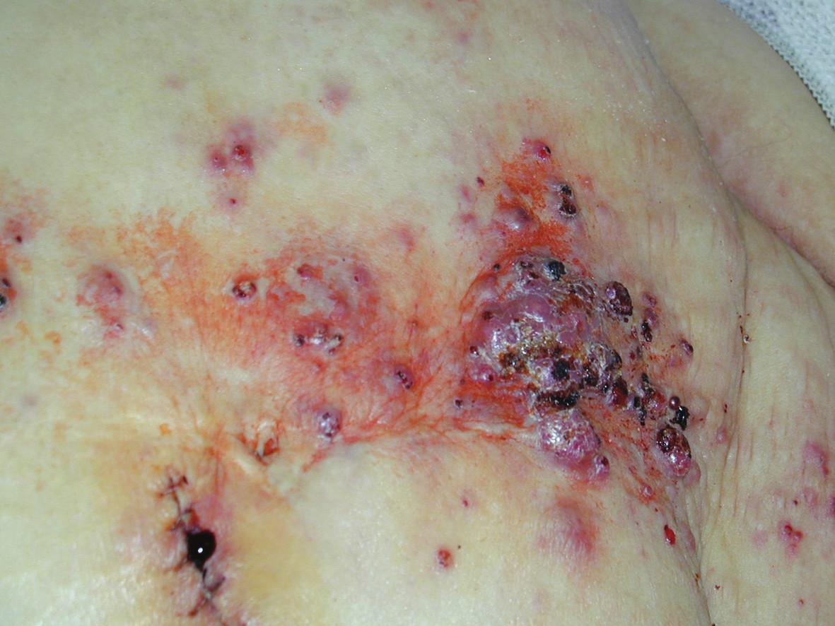 Výsev prominujících ložisek kožních metastáz v periumbilikální oblasti
