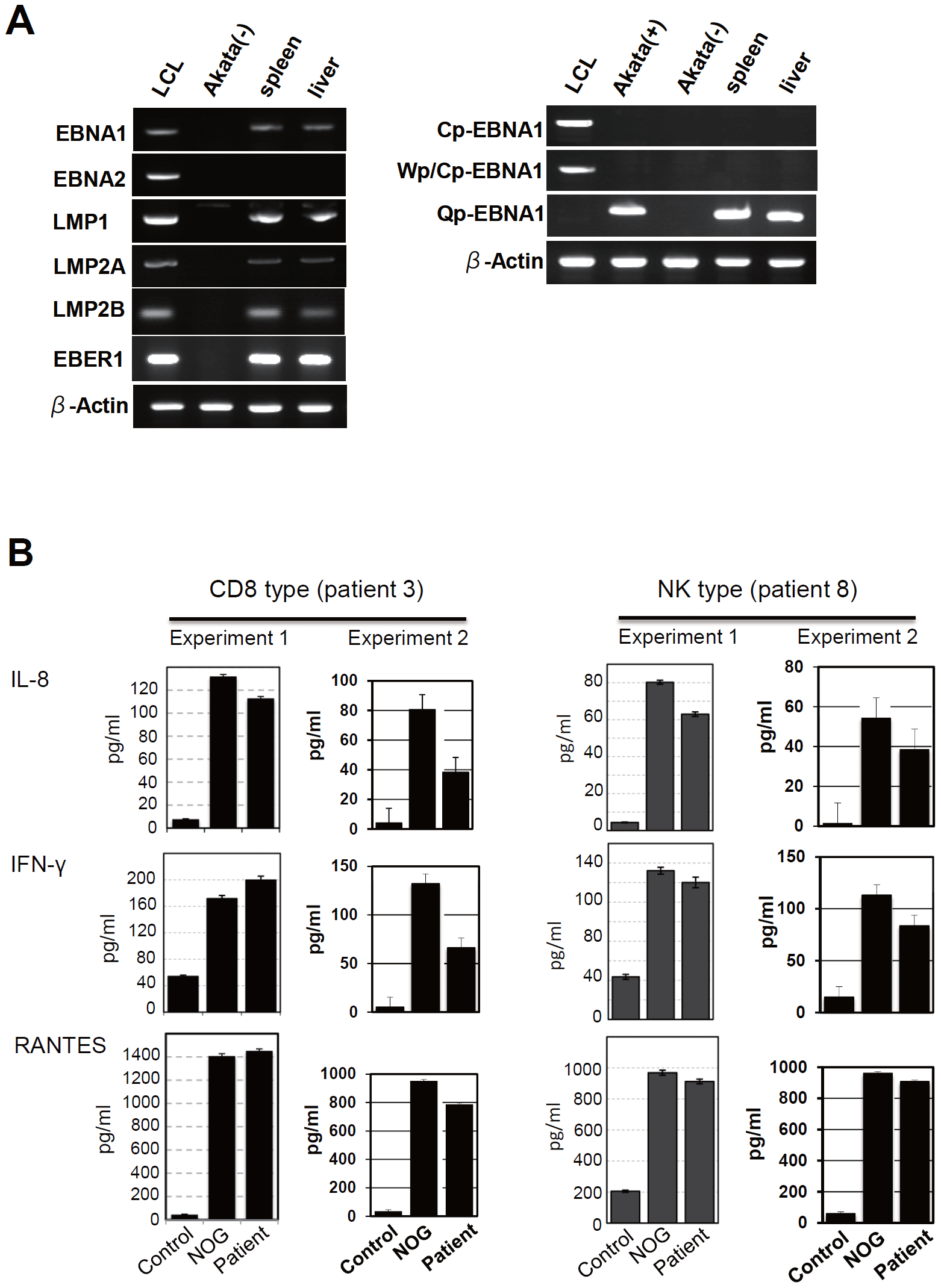 Analyses on the latent EBV gene expression and cytokine production in NOG mice transplanted with PBMC of CAEBV patients.