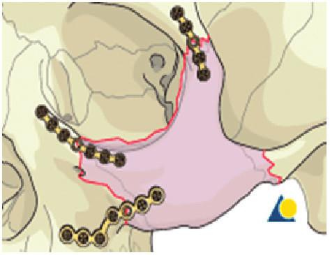 Schéma osteosyntézy zlomeniny lícně-čelistního komplexu
