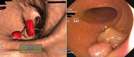 Porovnání obrazu z CT kolonografie s konvenční kolonoskopií.