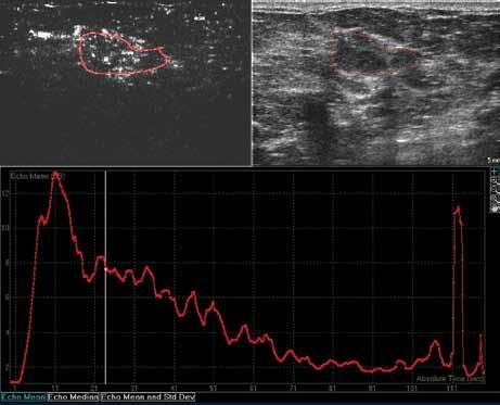 Typický obraz karcinomu: překotné sycení, vysoký peak enhancement, nápadně rychlý wash out time.