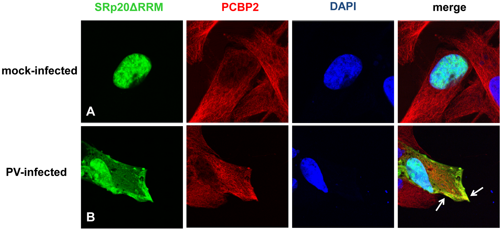 SRp20ΔRRM partial co-localization with PCBP2 in the cytoplasm of poliovirus-infected SK-N-SH cells.