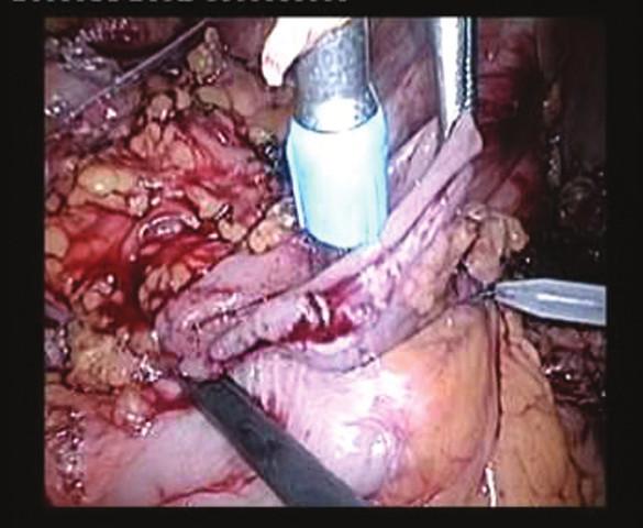 Intraperitoneální založení hlavice cirkulárního stapleru Fig. 2: Intraperitoneal placement of the anvil