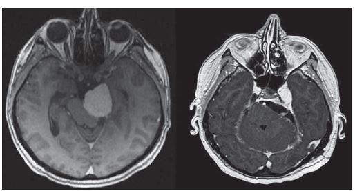 Předoperační a pooperační snímky petrokliválního meningeomu.