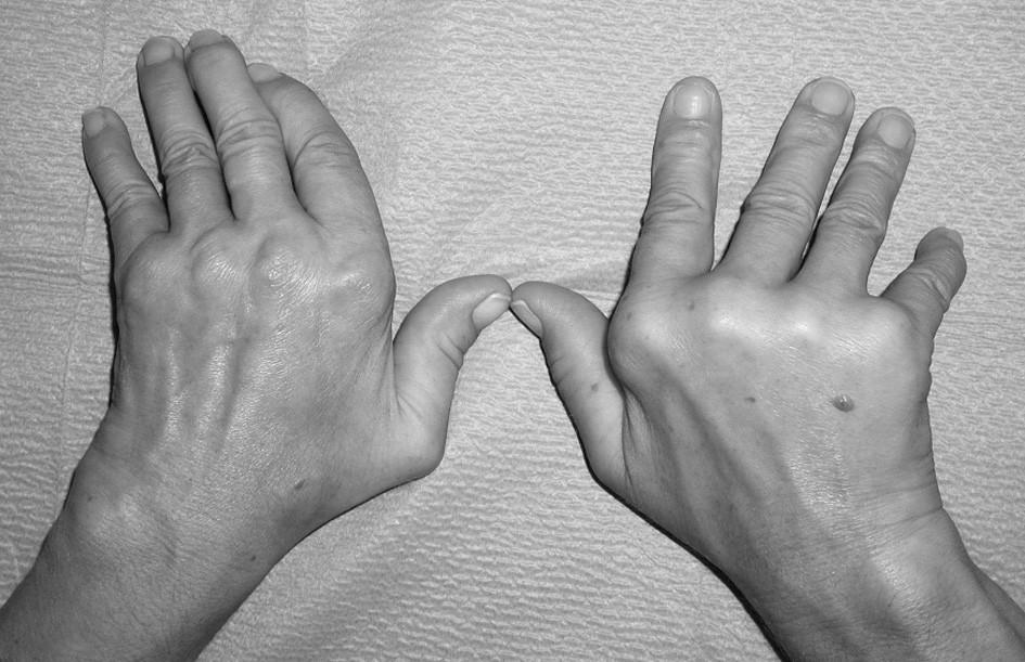 Jaccoudova artropatie u systémového lupus erytematodes (pozorování č. 5 v tab. 3 a 4).