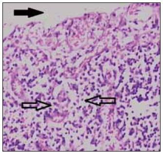 Histologické vyšetrenie. Luminálna časť čreva (plná šípka) a granulačné tkanivo zo spodiny defektu s výraznou vaskularizáciou a masívnou chronickou zápalovou celulizáciou (prázdne šípky). Známky malignity neprítomné. Hematoxylín a eozín, zväčšenie 100-krát.