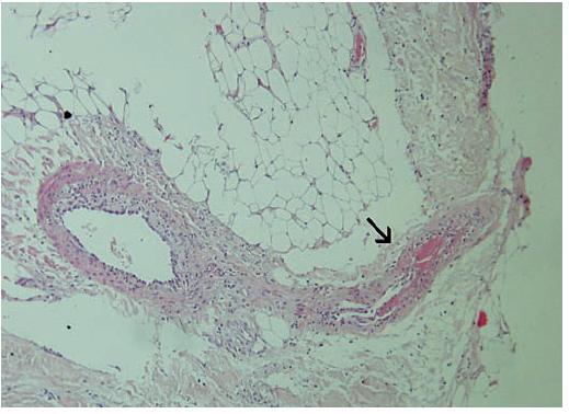 Histologický nález Šipkou označená tepénka v septu subutis je trombotizována, její stěna je oslabená částečnou nekrózou (zvětšení 100krát, barvení HE).