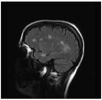 FLAIR 1 a 2 – vyšetření FLAIR v sagitální rovině – vícečetná ložiska patologicky vysokého T2 signálu v subkortikální a periventrikulární lokalizaci včetně tumoriformní plaky (FLAIR 1).