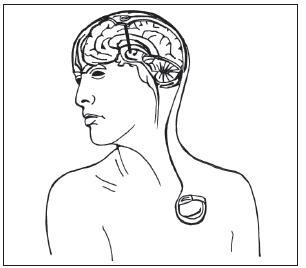 Obr. 12. Schéma implantovaného stimulačního systému (elektroda, spojovací kablík, neurostimulátor).