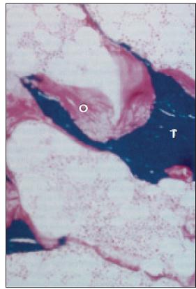 Histologický nález při osteomalacii. Kostní trámce (T) obklopuje nemineralizovaná nově tvořená kost – osteoid (O).