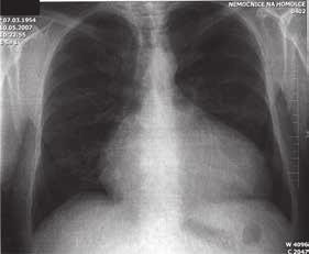 RTG srdce a plic u Ebsteinovy anomálie