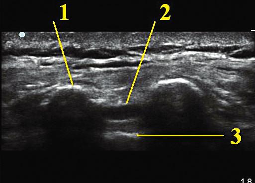 Ultrazvukové zobrazení kaudálního prostoru v transverzální projekci