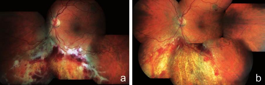 """Klinický nález u pacienta z kazuistiky 1. Obraz fulminantní formy CMV retinitidy typu """"kečup a sýr"""" a perivaskulární infiltráty typu """"omrzlých větví"""" u 32letého pacienta po alogenní transplantaci kmenových krvetvorných buněk pro akutní myeloidní leukémii a), regrese nálezu na fundu postiženého oka po 8 týdnech terapie gancyklovir i.v. (Cymevene) s resorpcí retinálních hemoragií a jizvením (atrofizací) sítnice s hrubými přesuny pigmentu b)"""