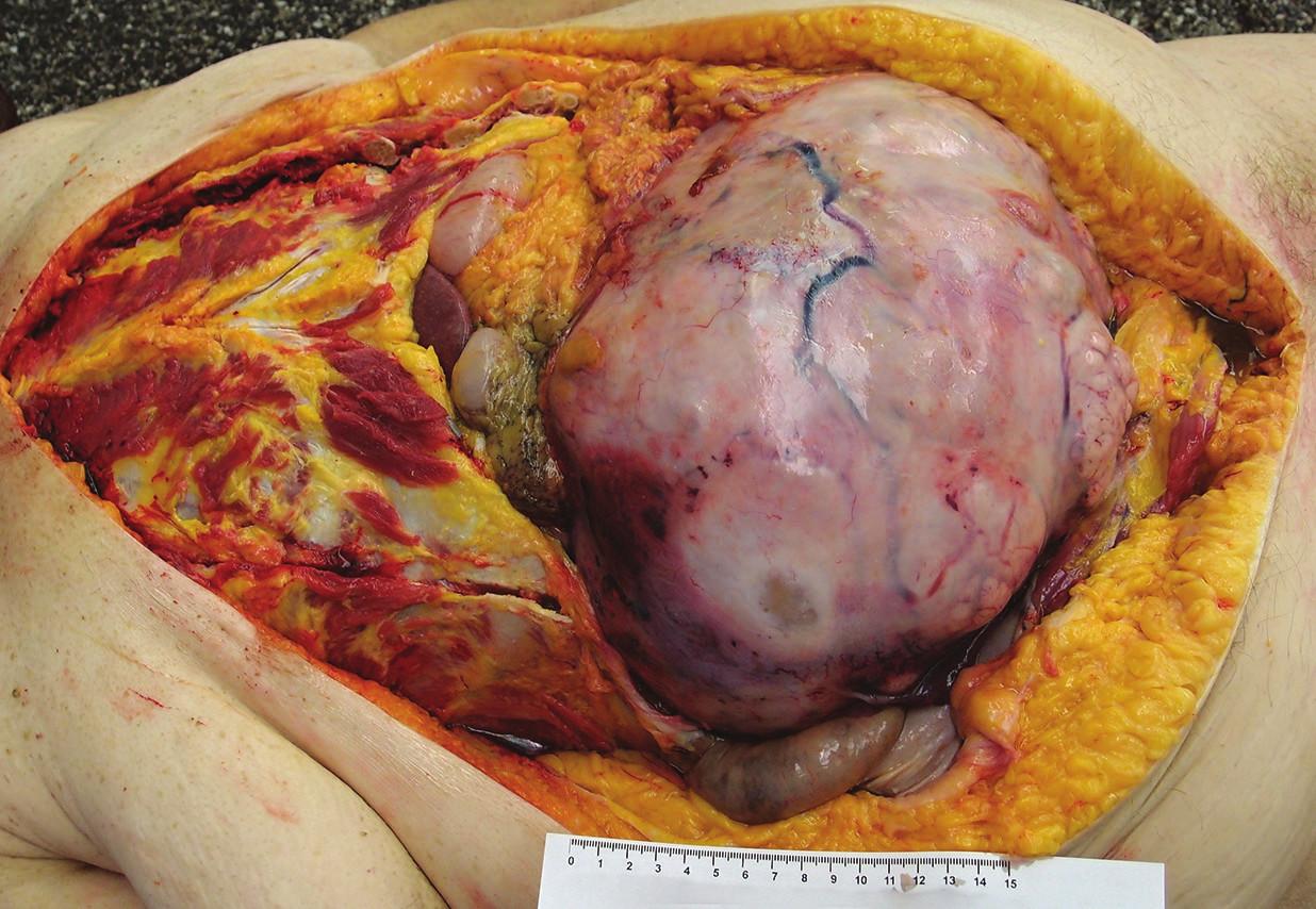 Žena, 50 let, stěžovala si na dušnost, nevolnost, zemřela náhle doma, byla prováděna resuscitace. Dle anamnézy se léčila s hypertenzí, poslední 3 měsíce pozorovala hubnutí. Příčinou úmrtí byla plicní embolie s akutním cor pulmonale u pacientky se zhoubným nádorem pravého vaječníku s metastázami do dělohy a lymfatických uzlin. V dutině břišní se nacházel nádorový útvar vycházející z pravého vaječníku, velikosti 30 x 26 x 25 cm. Mikroskopicky byl diagnostikován mucinózní cystadenokarcinom.