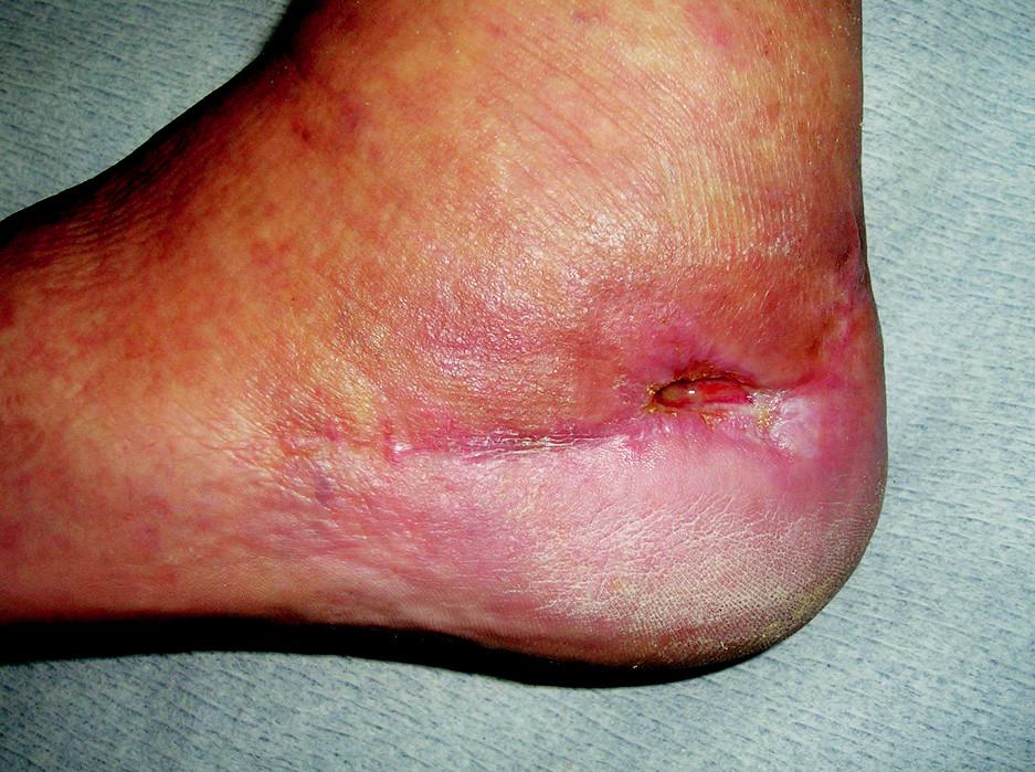 Hojící se ischemický defekt po apikální nekróze při špatně vedeném řezu Fig. 4. Ahealing ischemic defect following apical necrosis in incorrectly performed incision
