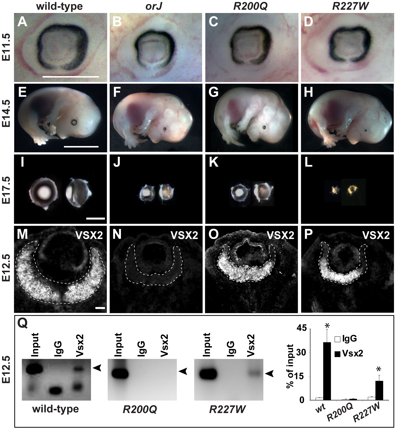 The <i>R200Q</i> and <i>R227W</i> mutations cause non-syndromic congenital microphthalmia.
