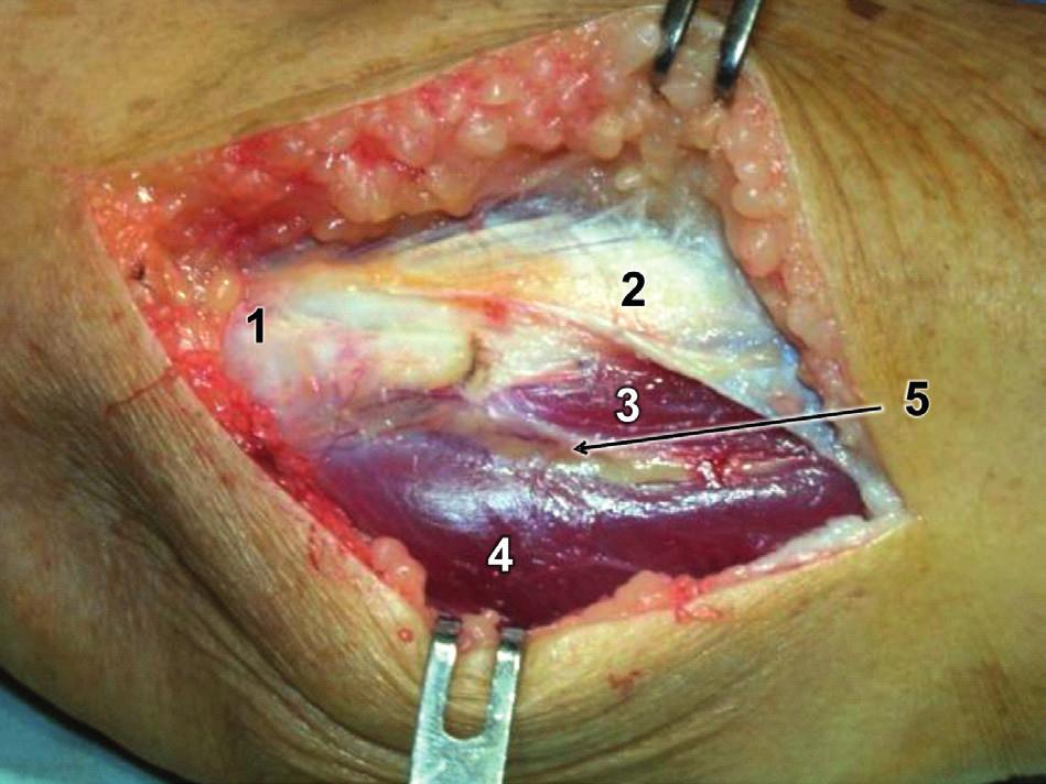 Modifikovaný Kocherův přístup – incize fascie: 1 – epicondylus lateralis humeri, 2 – odtažená fascie extenzorů, 3 – m. extensor carpi ulnaris, 4 – m. anconeus, 5 – Kocherův interval vyplněný tukovou tkání, ve které prosvítají větve a. interossea recurrens. Fig. 8: Modified Kocher approach – fascia incision: 1 – lateral epicondyle of humerus, 2 – retracted extensor fascia, 3 – extensor carpi ulnaris, 4 – anconeus, 5 – Kocher interval filled with fatty tissue with visible branches of the interosseous recurrent artery.