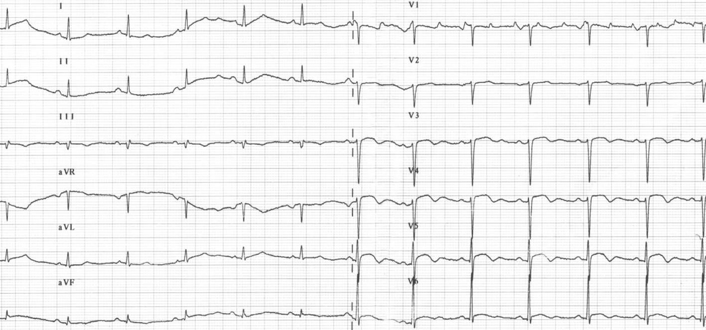 Obr. 3B. EKG-křivka z druhé hospitalizace.