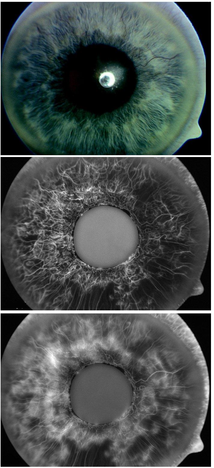 a: Natívna snímka dúhovky pacienta pred podaním bevacizumabu. IOT 36 mm Hg b,c: Fluoroangiografia dúhovky toho istého pacienta pred podaním bevacizumabu