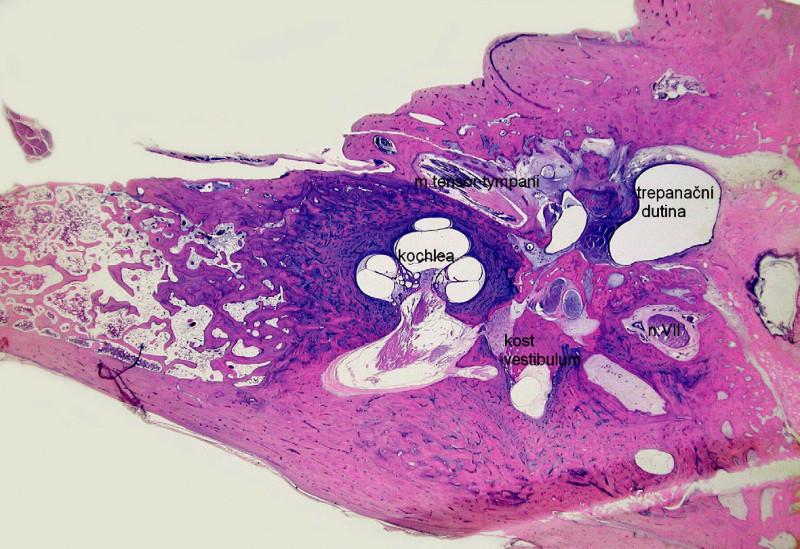 Osifikující labyrintitida – novotvořená kost v oblasti vestibula vnitřního ucha. Kazuistika 4. - histologický obraz, horizontální řez pravou spánkovou kostí, barvení hematoxylin eozin.