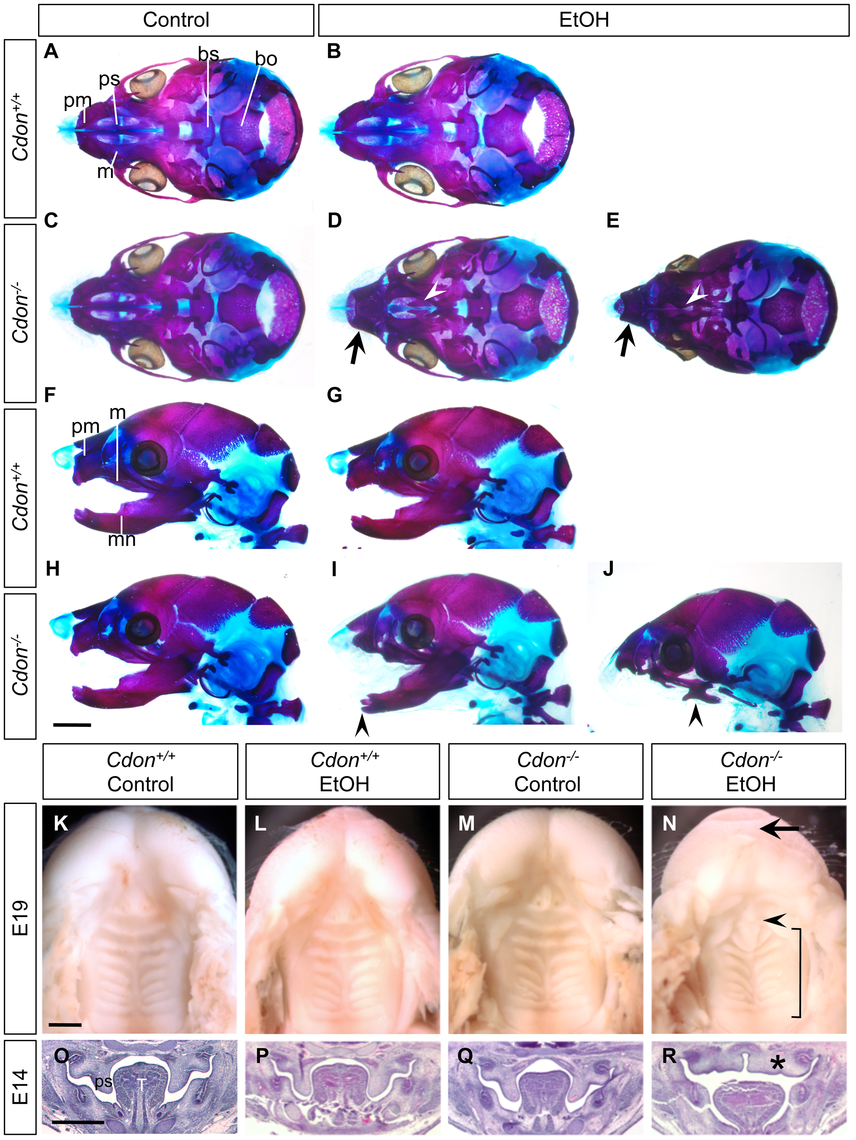 Cranial bone and palatogenesis defects in ethanol-treated <i>Cdon<sup>−/−</sup></i> mice.