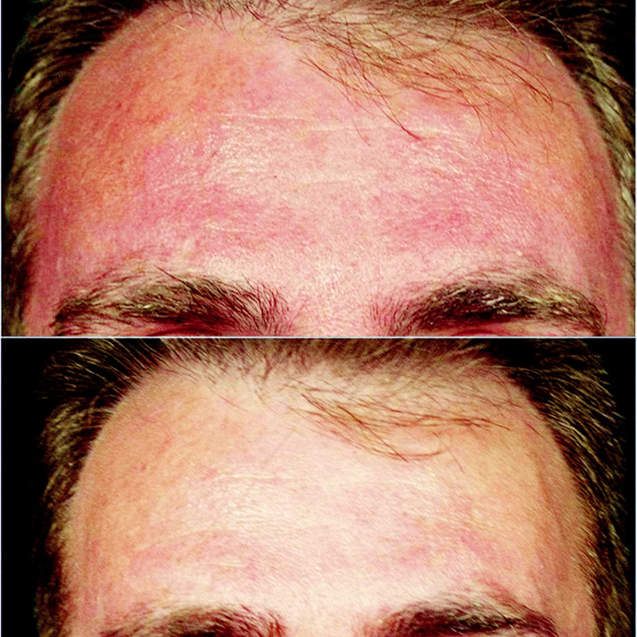 Fig. 2. Pre and post four treatments