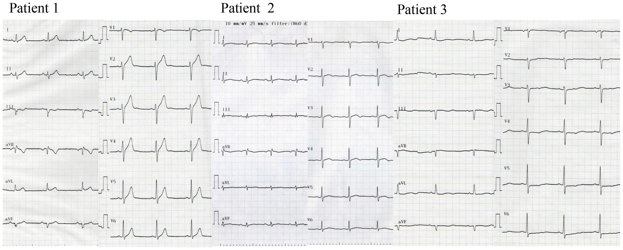 Twelve-lead ECG of patients with <i>SEMA3A</i><sup>I334V</sup>.