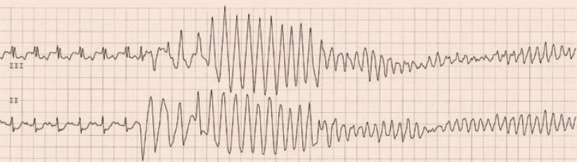 Záznam z monitorace EKG u pacienta se stenokardií a sinusovou tachykardií. V modifikovaných končetinových svodech jsou patrné deprese úseku ST, časná KES (první ektopický komplex) spustila polymorfní komorovou tachykardii, která přešla rychle do fibrilace komor.
