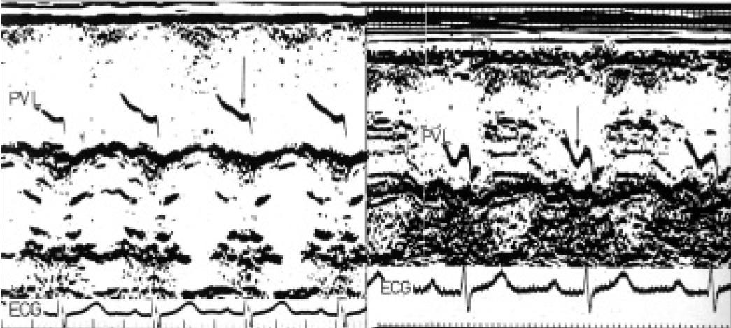 """M-mode chlopně plicnice ukazuje normální sestupný dip (šipka na levém panelu) v síňové systole. Na pravém panelu je dip výrazný (šipka) a poukazuje na přítomnost široké vlny """"a"""" pravé komory u pacienta s těžkou stenózou plicnice."""