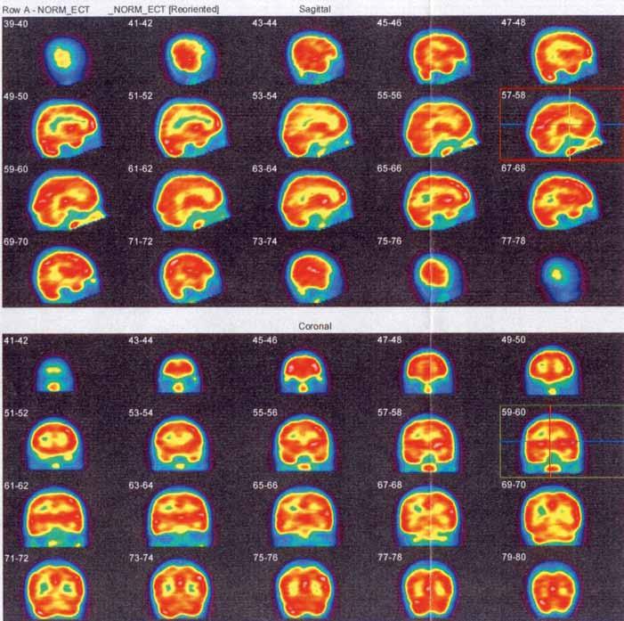 Obr. 3a. SPECT vyšetření mozku neprokazuje ložiskovou poruchu relativní mozkové perfuze.