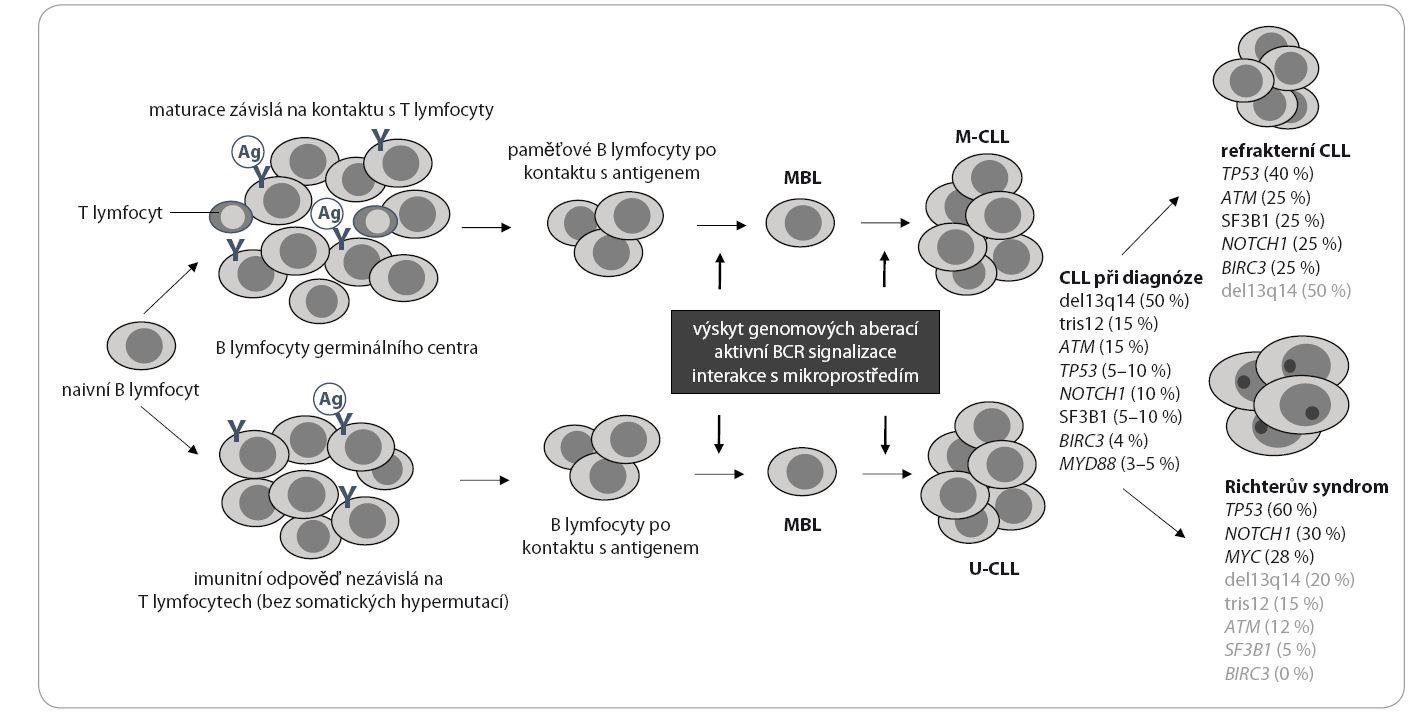 Klonální evoluce CLL a přítomnost molekulárních lézí v jednotlivých stadiích onemocnění. Hlavní mechanizmy patogeneze CLL jsou vypsány v šedém rámečku (podle Gaidano et al, 2012) [117].