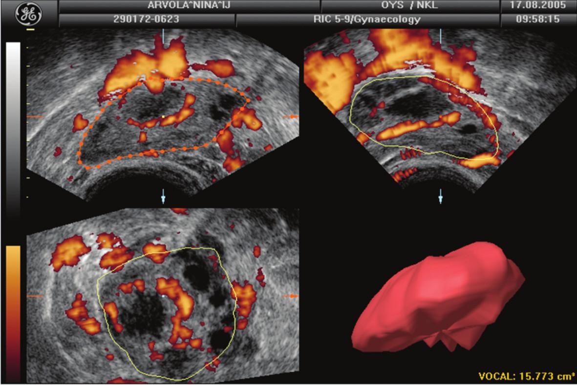 Objem dominantního ovaria s funkčním žlutým tělískem při zobrazení pomocí program VOCAL