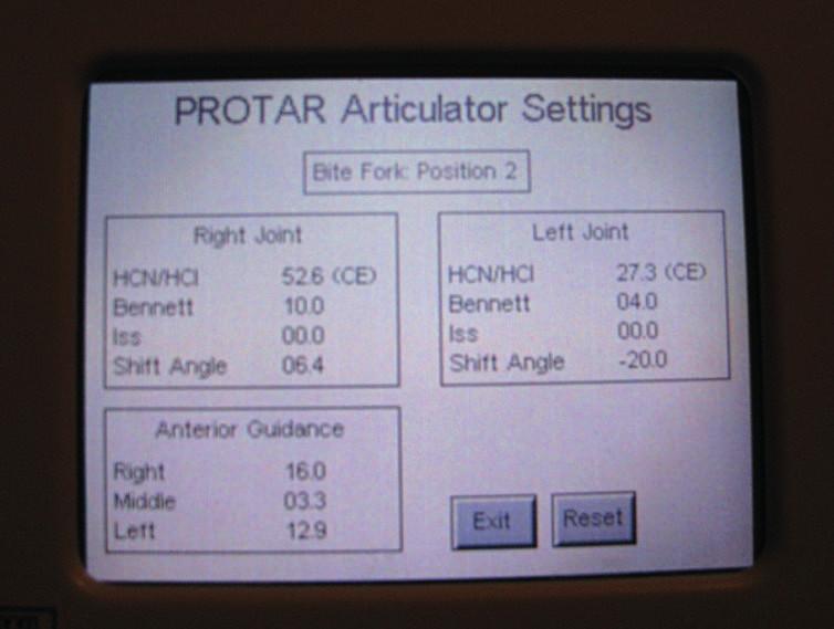 Display s výsledky měření jednotlivých gnatologických hodnot (foto autoři)