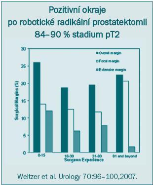 Schéma 2. Vysoký výskyt pozitivních chirurgických okrajů i po provedení velkého počtu roboticky asistovaných radikálních prostatektomií.