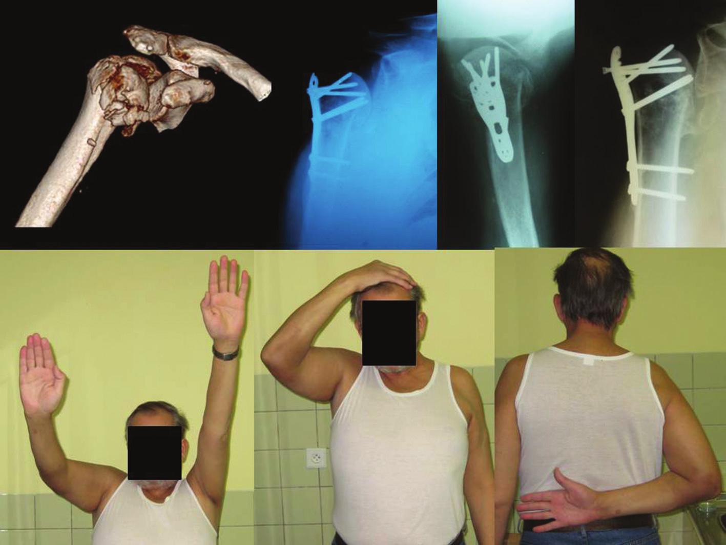 Štvor-časťová zlomenina proximálneho humeru typu Neer VI so zadnou luxáciou hlavy (vľavo) riešená otvorenou repozíciou a vnútornou fixáciou pomocou uhlovostabilnej PHILOS dlahy. Pooperačný röntgen v dvoch projekciách (AP, axilárna) a röntgen 12 mesiacov po osteosyntéze (vpravo). Fig. 1: Four-part proximal humerus fracture type Neer VI with posterior dislocation of the humeral head (left) treated by open reduction and internal fixation with the angle stable plate (PHILOS). Postoperative X-ray scans in two projections (AP, axillar) and at 12 months from osteosynthesis (right).