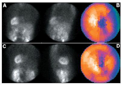 Studie pacienta s dextrokardií – vybrané snímky tomografické studie (orbita 180°) a polární mapy: standardní snímání, tj. přes levý bok (A + B) a vhodnější snímání přes pravý bok (C + D).