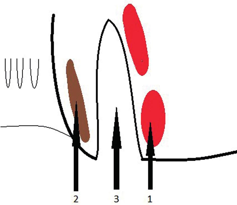 Přístup do intersfinkterického prostoru 1 – m. sphincter ani externus, 2 – m. sphincter ani internus, 3 – interfinkterický prostor Fig. 5: Access to the intersphincteric area 1 – m. sphincter ani externus, 2 – m. sphincter ani internus, 3 – intersphincteric area