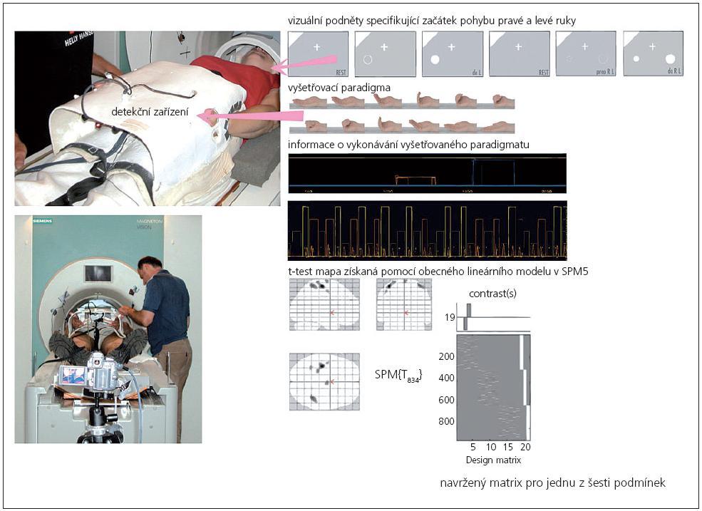 Vyšetření pomocí fMR.