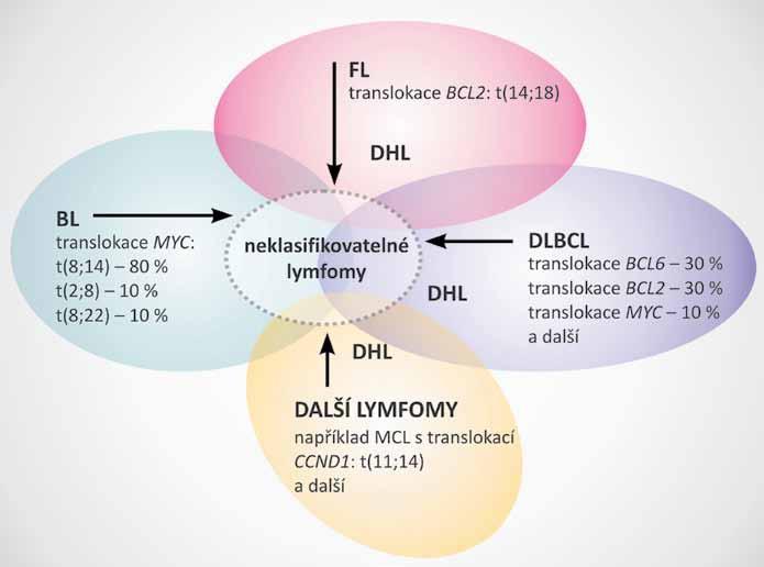 Šedá zóna netypických, neklasifikovatelných lymfomů. Potenciální zdroje a vývoj neklasifikovatelných lymfomů a lymfomů se dvěma zásahy. Převzato a upraveno dle [13].