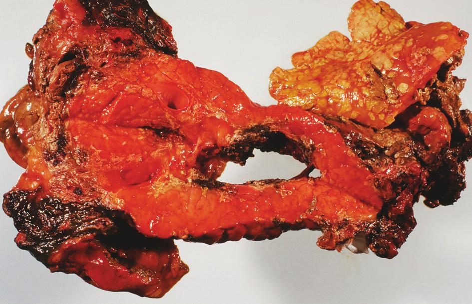 FAP – sekční nález – destrukce těla pankreatu – anamnéza 28 hodin Fig. 2. FAP – section finding, destruction of the pancreatic body – a 28-hour history