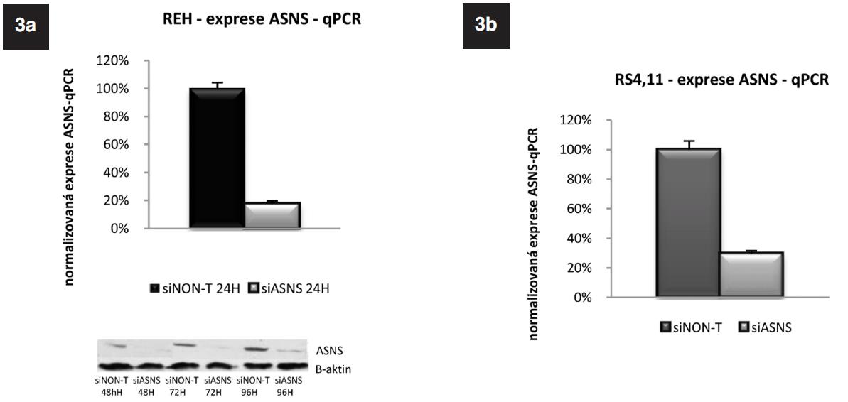 Exprese genu pro ASNS u linie REH a RS4;11 po specifickém umlčení tohoto genu metodou RNA-interference. Western Blot potvrzující úspěšnost umlčení genu pro ASNS na proteinové úrovni u linie REH.