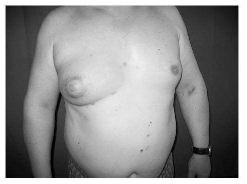 Posttraumatická panikulitida prsu