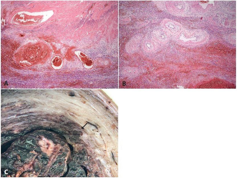 <b>Subinvoluce cév placentárního lůžka</b>. Hysterektomie 2 týdny po porodu pro puerperální sepsi. Histologicky flegmonózní zánět dělohy s přechodem do parametrií, subinvoluce cév placentárního lůžka (makrofotka z jiného případu s velmi podobnou anamnézou). <b>A, B</b>: různý stupeň involuce spirálních arterií (HE, zvětš. 40x). <b>C</b>: makrofoto patologicky neuzavřené spirální arterie (šipka).