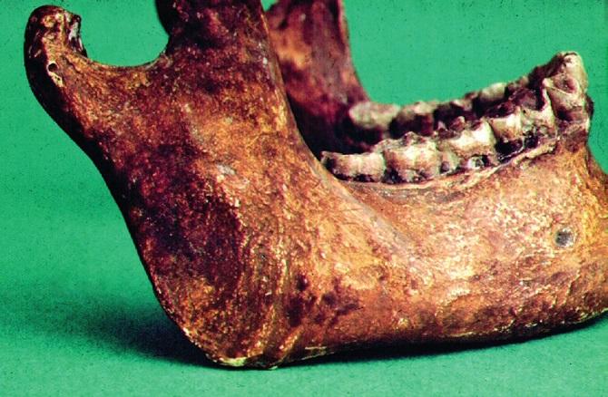 Obr. 10a Změněný reliéf tuberositas masseterica, dokládající poúrazové přeorientování svalových snopců (kopie).