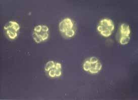 pANCA protilátky – perinukleární typ imunofluorescence