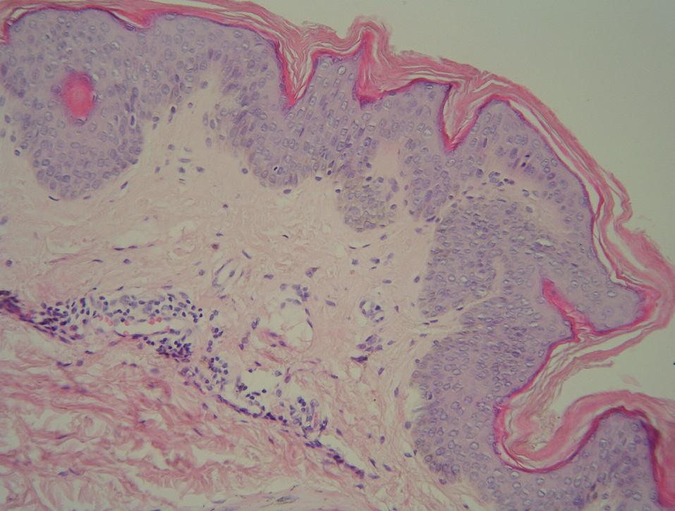 Histologie – případ 1: hyperplazie epidermis s mírnou hyperkeratózou a papilomatózou s ojedinělými lymfocyty a melanofágy v horním koriu (HE, zvětšení 200krát).