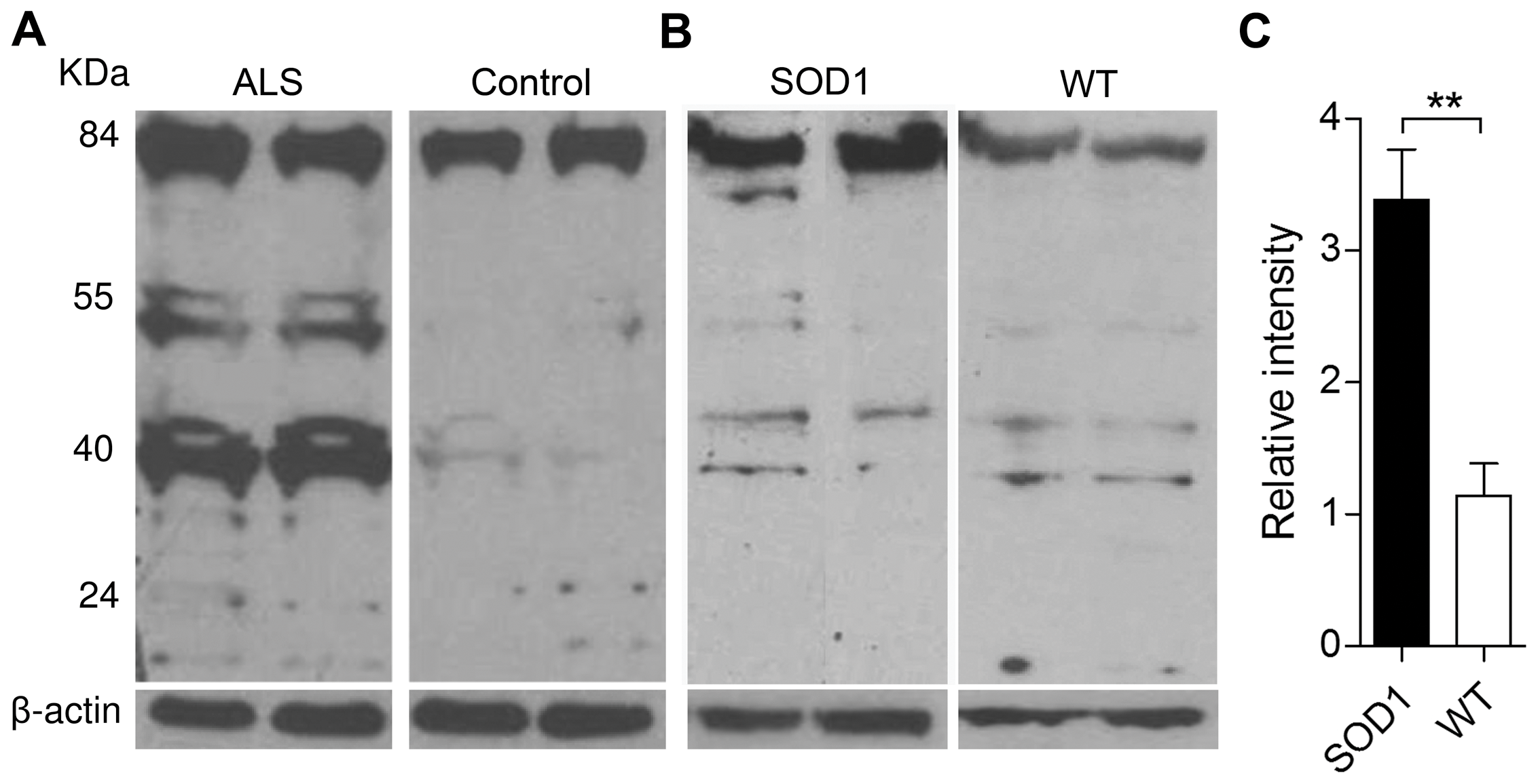 Expression of Oxr1 in ALS and ALS-related neurodegeneration.