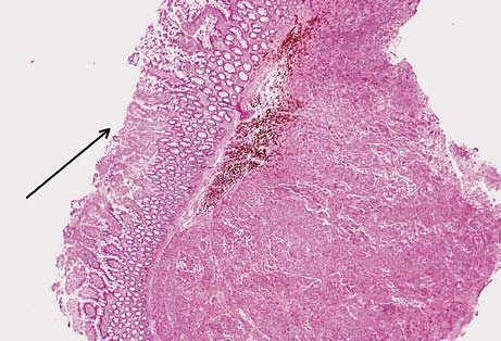 Submukózní ložisko metastázy melanomu. Na povrchu ulcerovaná sliznice tenkého střeva (šipka). Hematoxilin-eozin.